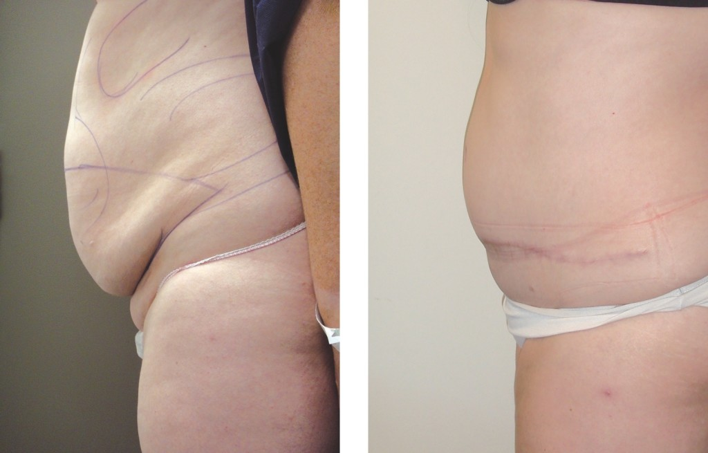 Before & After abdominoplasty by Dr Flynn