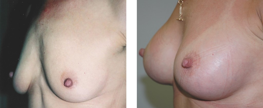 Before & After breast augmentation by Dr Flynn