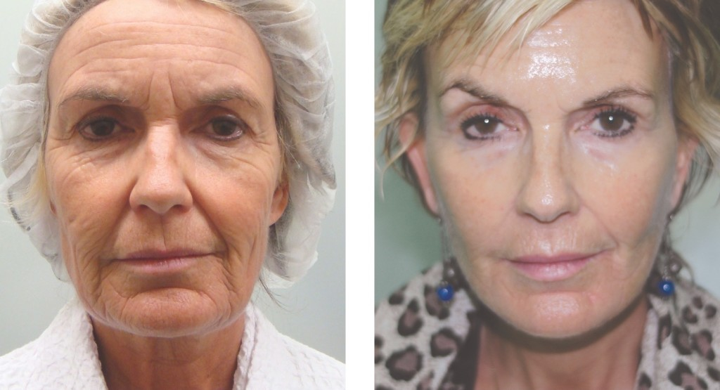 Before & After facial rejuvenation by Dr Flynn