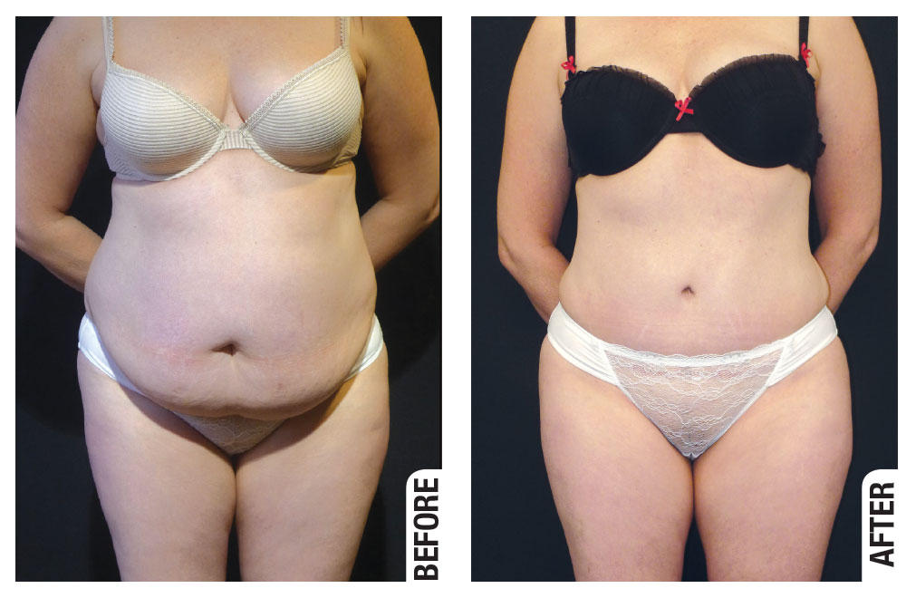 Before and after abdominoplasty surgery by Dr Tavakoli